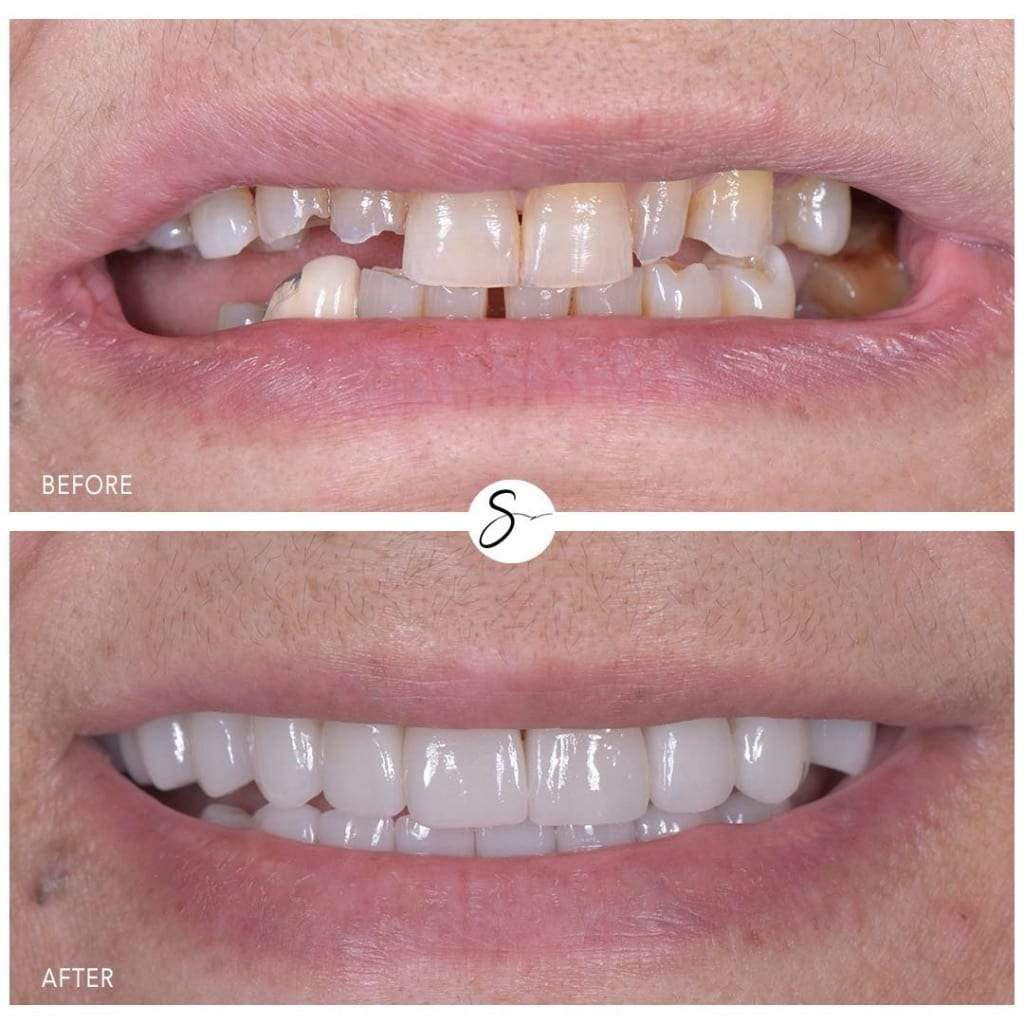 Before and After Smile Transformation
